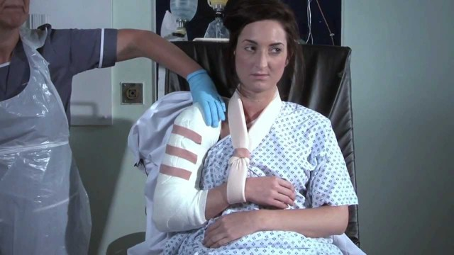 Оскольчатый перелом плечевой кости: причины, симптомы, лечение, риски