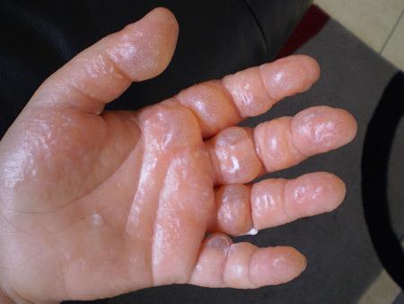 Буллезный дерматит: симптомы и лечение в домашних условиях