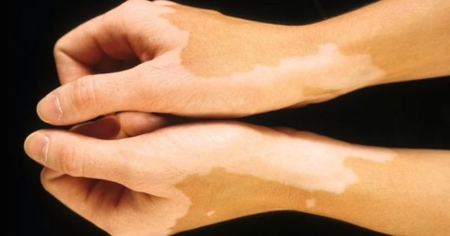 Как лечить витилиго у детей и взрослых: причины и симптомы витилиго