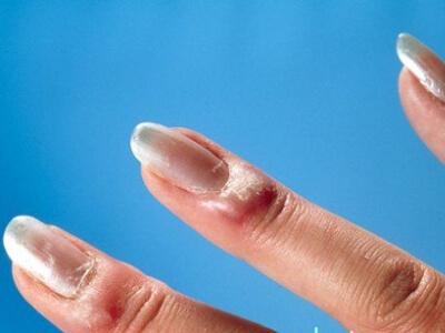 Что такое паронихия, лечение в домашних условиях и профилактика