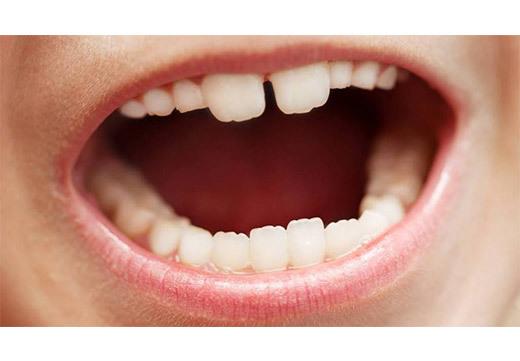 Нарост на миндалине: причины появления и как лечить?