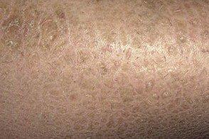 Вульгарный ихтиоз кожи: симптомы, фото у детей, наследование и лечение