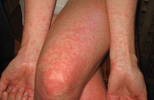 Сыпь на теле ногах руках комплект нижнего белья женского купить минск
