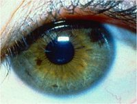 Белая точка, пятно на радужке глаза, похоже на соринку, мешает: лечение бельма