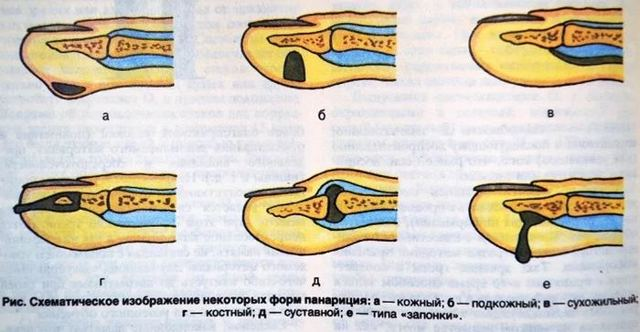 Костный панариций большого пальца кисти: причины, симптомы, лечение