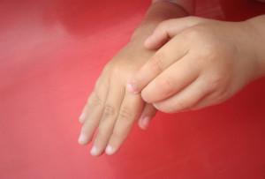 Чесотка — симптомы, первые признаки, лечение чесотки в домашних условиях, мазь от чесотки