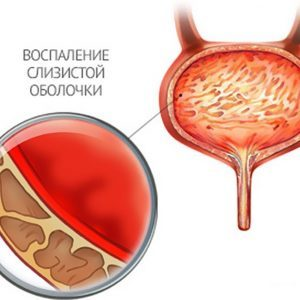 Тянет низ живота и поясницу у женщин и мужчин, при беременности