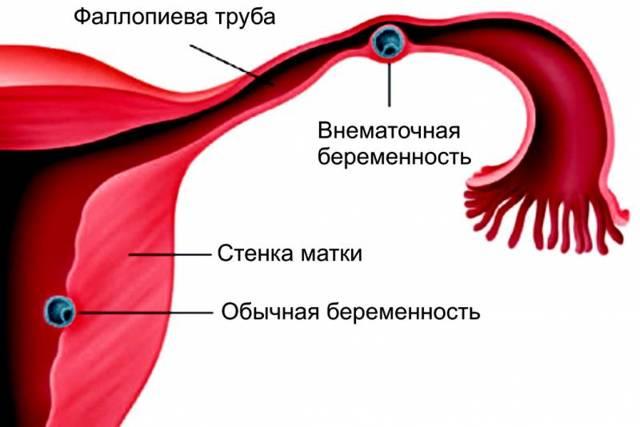 Кровотечение на раннем сроке беременности - что делать: первая помощь и лечение кровотечений в первой половине беременности.