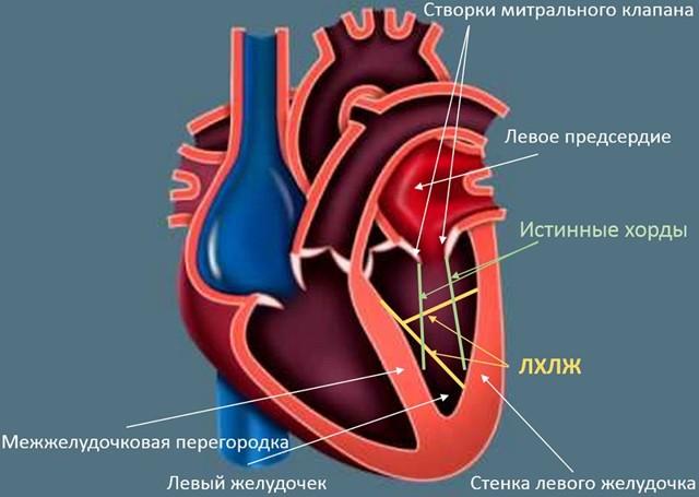 Чем опасна дополнительная хорда в сердце