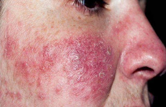 Аллергия на алкоголь: как проявляется, симптомы, красные пятна, лечение