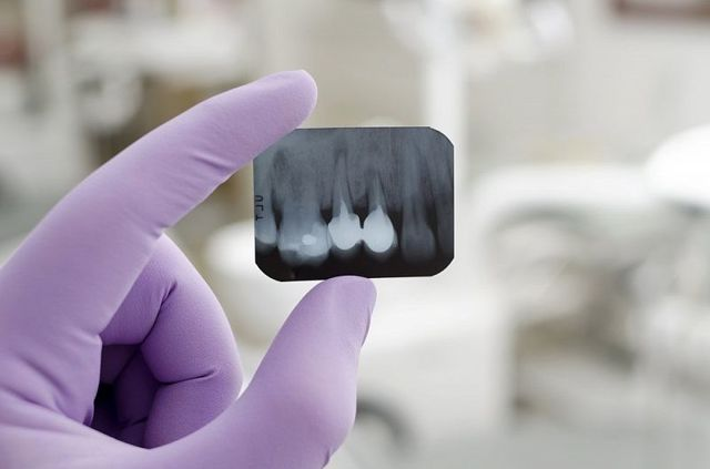 Альвеолит после удаления зуба: симптомы, фото и лечение