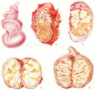Пиоспермия: что это такое и как лечится, пиоспермия и беременность