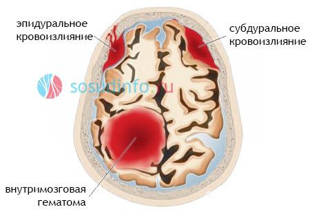 Как лечить нарушения мозгового кровообращения?