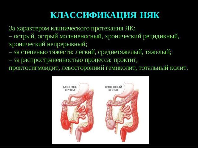 Прыщи из-за проблем с кишечником: о чем говорит появление прыщей на лице, как очистить кишечник и сформировать правильный рацион