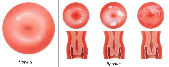 Лейкоплакия шейки матки: причины возникновения, симптомы, диагностика, лечение и профилактика