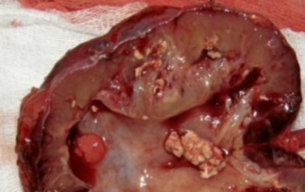 Паранефрит: что это такое, симптомы и лечение, классификация по МКБ 10