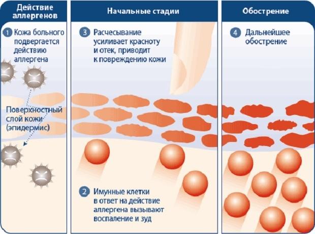 Почему летом появляются красные пятна на теле