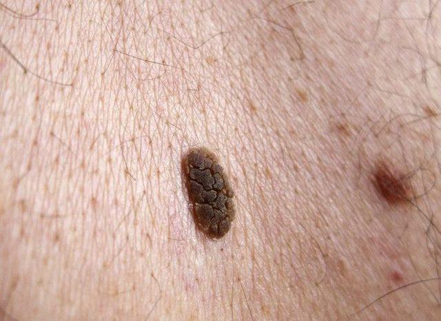 Как выглядят папилломы под мышками и чем лечить папилломы