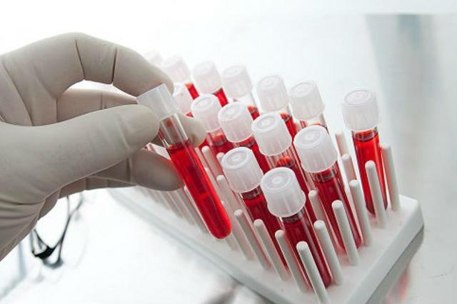 Как расшифровать анализ на описторхоз: трактовка результата анализа крови на описторхоз и вирус Эпштейн-Барра.