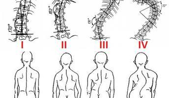 Как расшифровать рентген позвоночника и какие заболевания дают право на отсрочку в армии