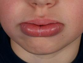 Как лечить хейлит на губах: причины, симптомы хейлита, атопический хейлит