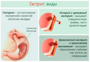 Симптомы заболеваний желчного пузыря: причины боли в правом подреберье, появлении налета на языке, горечи во рту