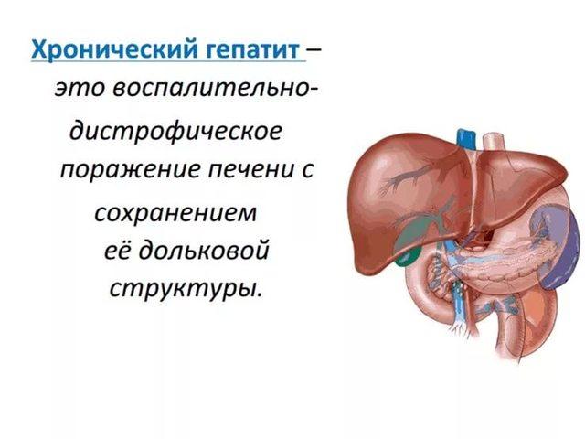 Хронический гепатит b, c: симптомы, лечение, УЗИ-диагностика, прогноз