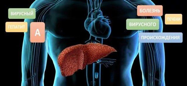 Гепатит А: что это такое и как передается, симптомы болезни Боткина, диагностика и лечение Боткина