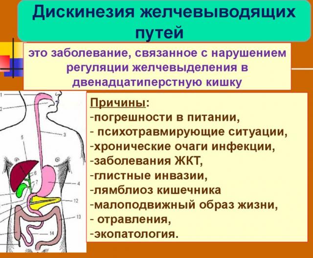 Как определить тип дискинезии желчевыводящих путей — Лечим ...