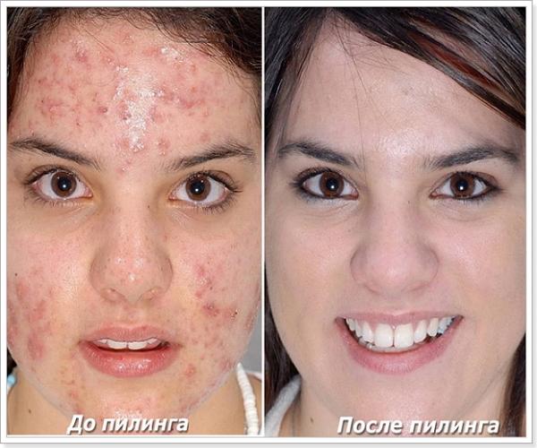 Лазерный пилинг лица: что это такое, противопоказания, фото до и после