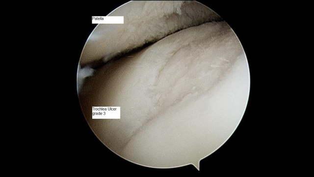 Остеоартроз: степени, симптомы и лечение