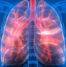 Саркоидоз легких: симптомы, лечение, причины и прогноз