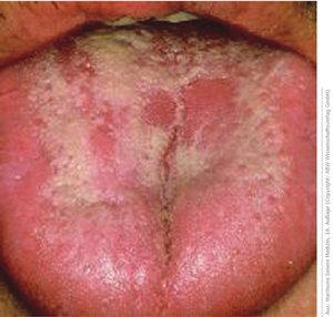Молочница во рту: симптомы и лечение, причины, профилактика молочницы у детей и взрослых