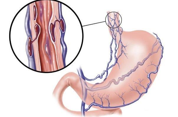 Почему появляется кровь в кале при запорах: какие причины появления алой крови из заднего прохода при дефекации