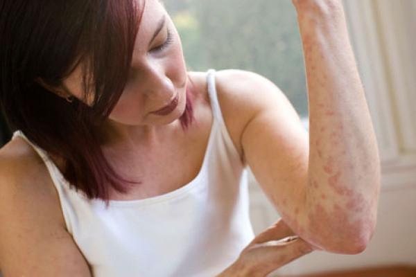 Крапипивница: причины заболевания, симптомы и методы лечения крапивницы у взрослых и детей