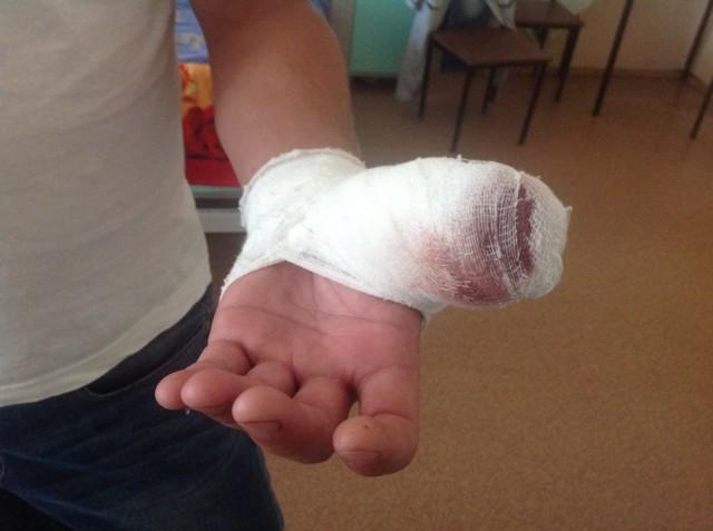 Чем обработать фалангу пальца, если оторвало кусок кожи?