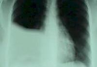 Гемоторакс: признаки, неотложная помощь, плевральная пункция и лечение