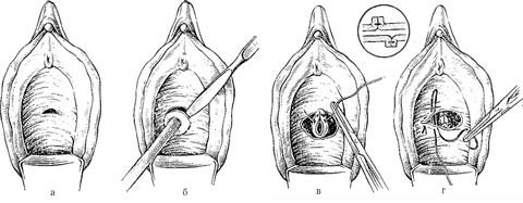 Свищ пузырно-кишечный, пузырно-маточный, уретральный, утретро-промежностный: лечение