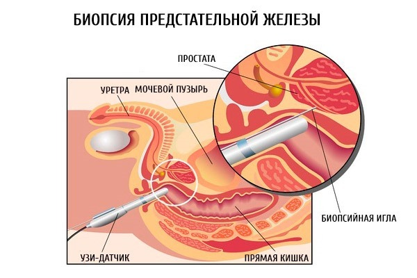 Киста простаты у мужчины: симптомы, лечение, последствия кисты предстательной железы