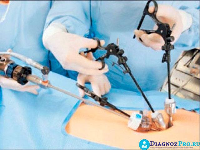 Кольпоскопия, гистероскопия и лапароскопия в гинекологии — показания, как делают