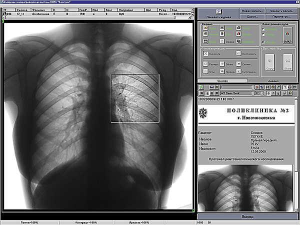 Насколько точны результаты флюорографии при диагностике пневмонии и бронхита?
