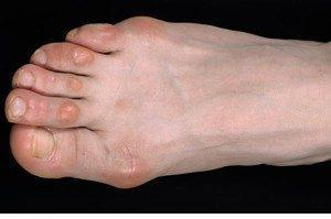 Как избавиться от мозоли на пальцах ног