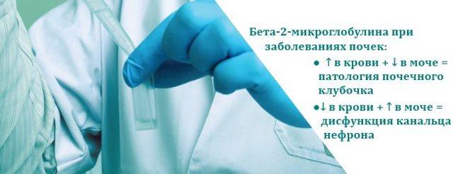 Анализ на онкомаркер бета-2-микроглобулин: что это, что показывает