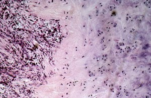 Рецидивирующий полихондрит: фото, симптомы, лечение