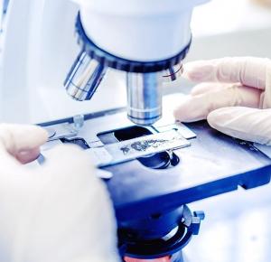 Анализы, соскобы на энтеробиоз: как правильно брать, результаты, расшифровка