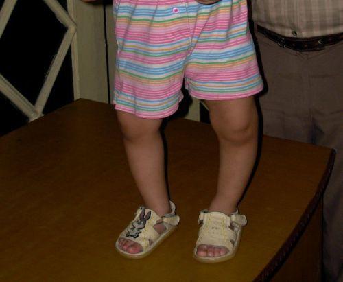 Рахит у детей: симптомы, лечение и профилактика рахита у детей
