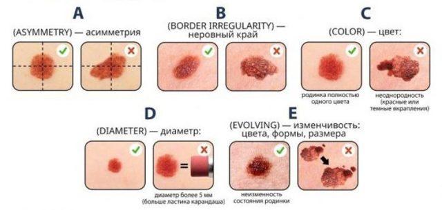 Дерматоскопия: что это такое, как проводится, основные показания и расшифровка