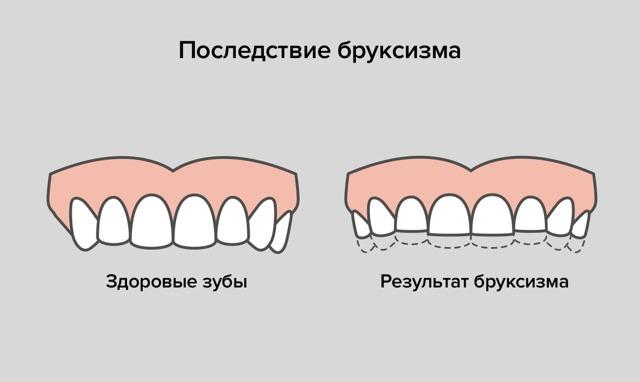 skripanje zubima paraziti)